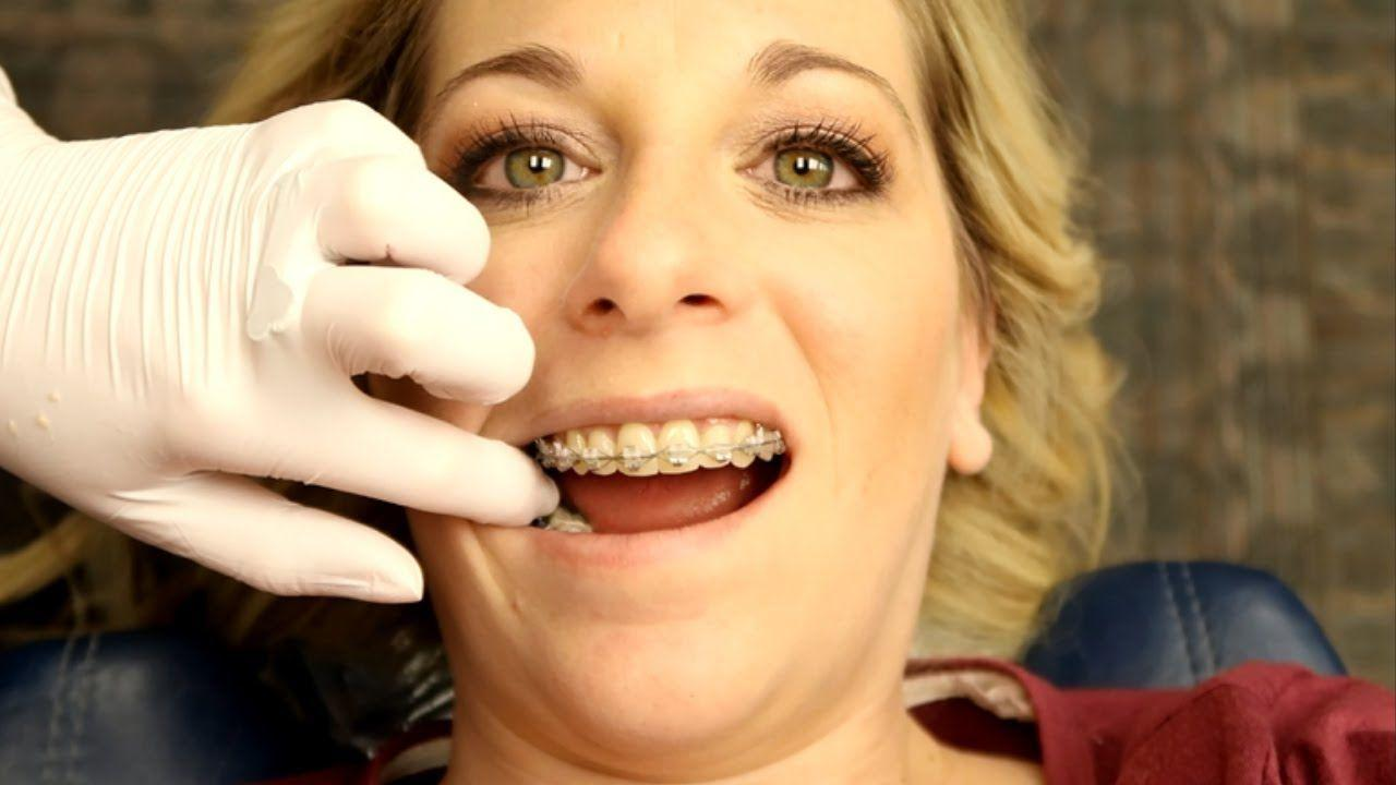 best of Braces an Getting adult as