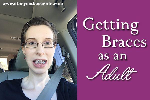 Getting braces as an adult
